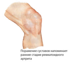 Синдром (болезнь) Рейтера: причини, симптоми, лечение