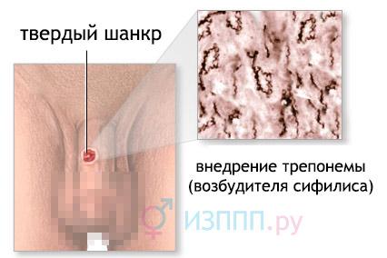 Твердий шанкр (сифилитический): симптоми, лечение