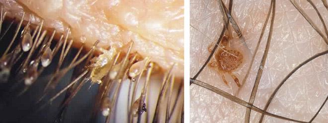 Лобковие вши (педикулез, фтириаз): симптоми, лечение
