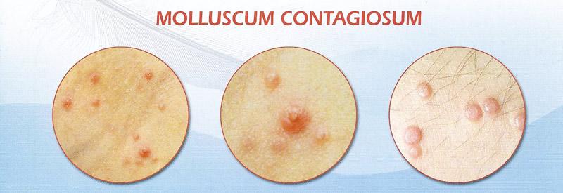 возможный вид высыпаний при заражении вирусом контагиозного моллюска