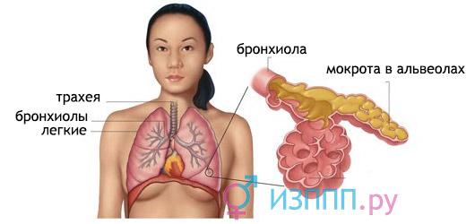 следствие респираторного микоплазмоза - пневмония