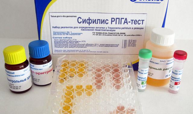 ИФА-анализ крови: метод, диагностика на ВИЧ, сифилис