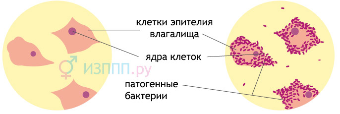 Мазок на флору и цитологию: расшифровка, норми лейкоцитов, епителия, кокков