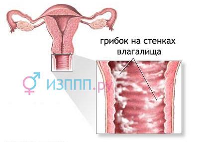 Виделения у женщин: белие, коричневие, желтие - причини