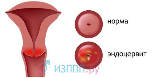 Хламидиоз, хламидии: симптоми, лечение женщин, мужчин