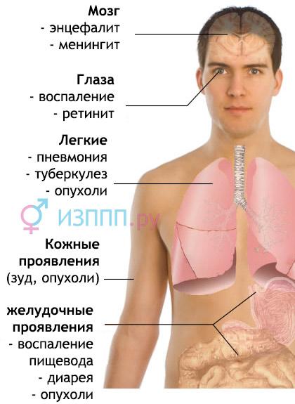 симптомы острой фазы ВИЧ, СПИДа
