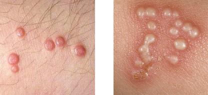 Бородавки на интимних местах (полових органах): лечение, причини