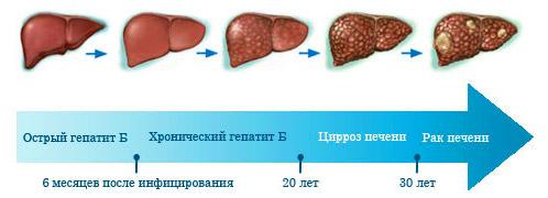 неблагоприятное развитие гепатита B