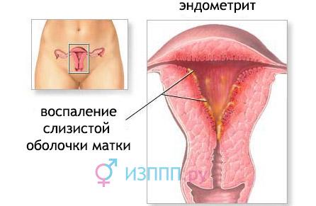 Эндометрит хламидийной и