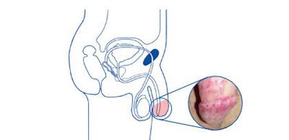 Candida albicans, кандида альбиканс: что ето, анализ, лечение
