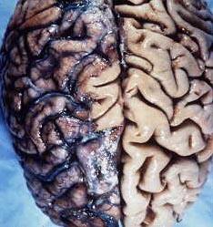 поражение нейросифилисом мозга