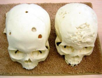 разрушение костей при латеральном сифилисе